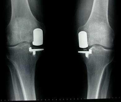 Surgery And Arthritis Treatment Presentation