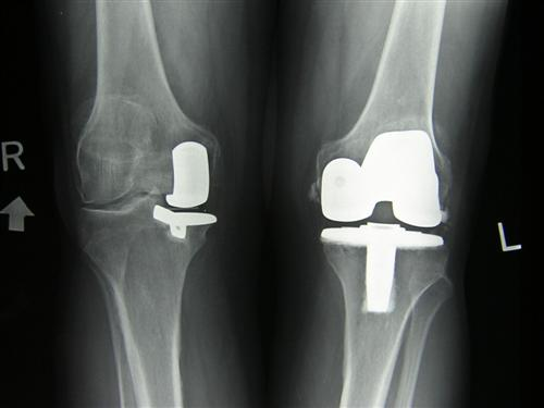 Osteoarthritic knee treatment options list 2 example 2 unicompartmental knee replacement oxford cemented and total knee replacement cemented publicscrutiny Image collections
